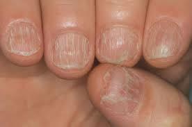 Trattamento di strisce bianche su unghie